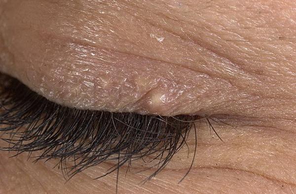 Липома на глазу