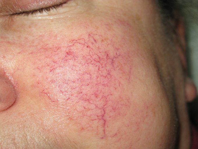 Что делать если на лице полопались сосуды