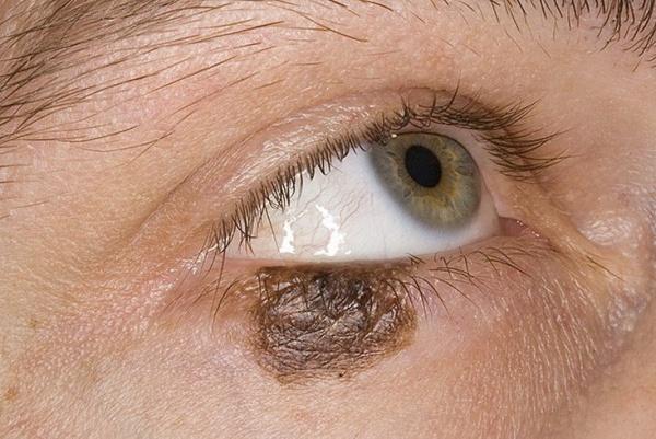 Меланома на лице