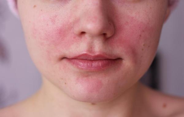 о чем говорят красные пятна на носу