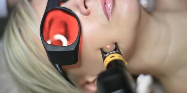 Удаление капиляров лазером