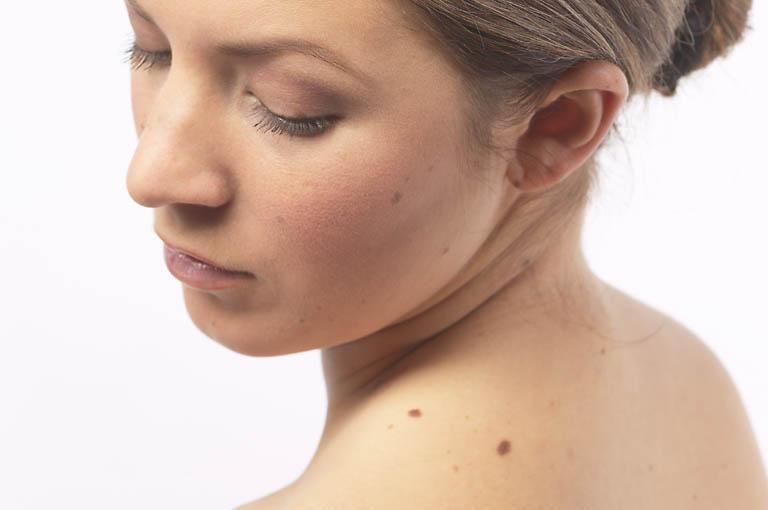 Бородавки папилломы лечение