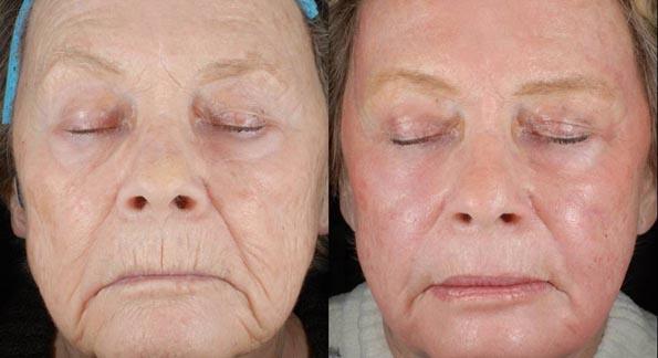 Лазер лица результат на лицо