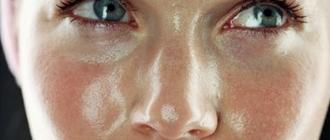 Жирность лица