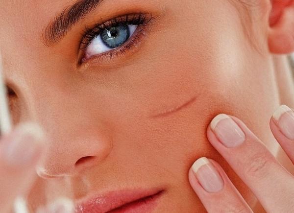 шрамы на лице и теле
