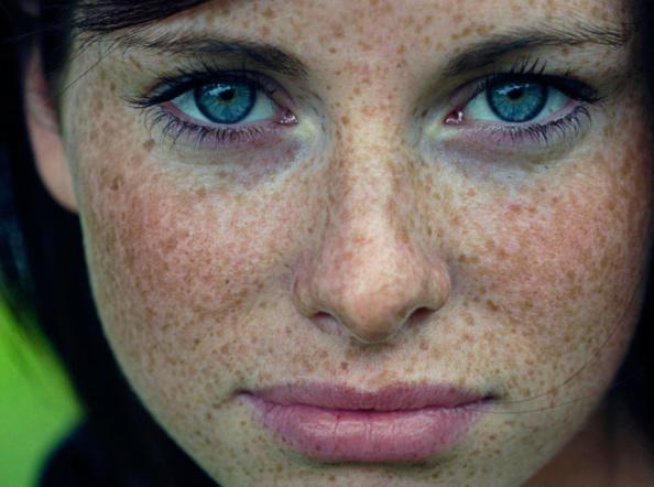 Пигментация кожи на лице