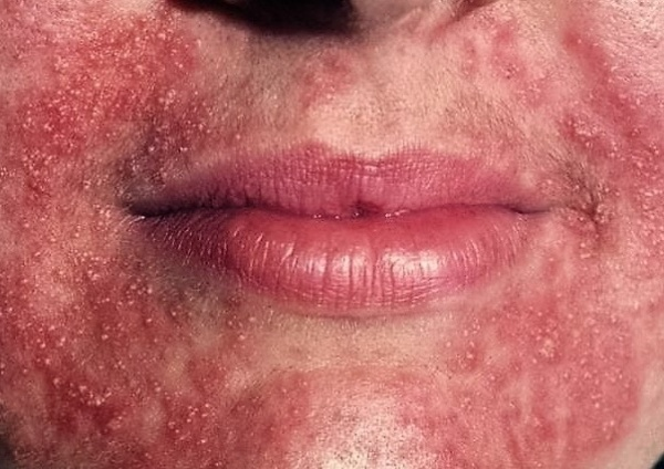 Сыпь на лице от косметики