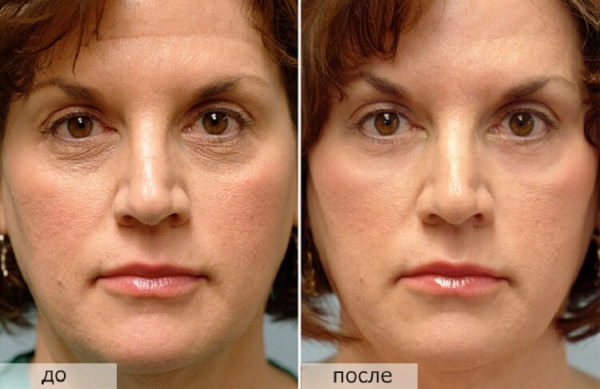 Процедуры для омоложения лица и подтяжки увядающей кожи