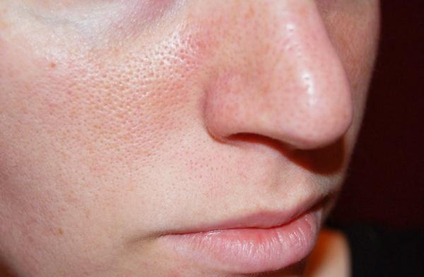 Расширенные поры на лице: причина и полезные рекомендации