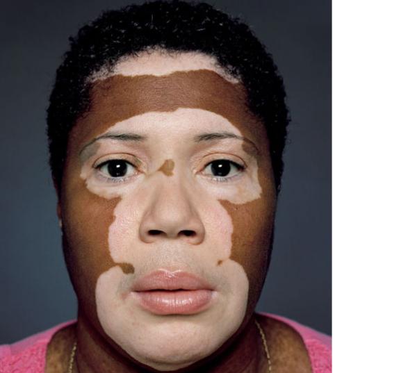На лице белые пятна: причины и методы избавления