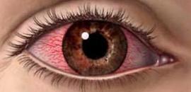 Какие мази подойдут от воспаления и покраснения глаз