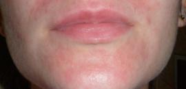 Причины появления аллергии на лице и как лечить это заболевание
