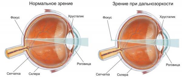 Гимнастика глаз для дальнозорких