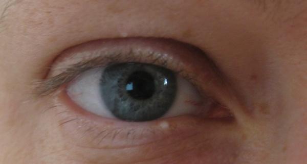 Жировик под глазом
