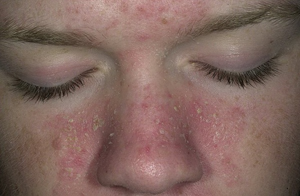 Сильное воспаление кожи лица