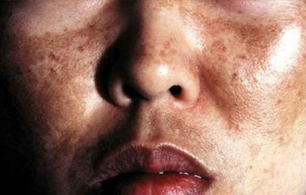 Мелазмы на лице