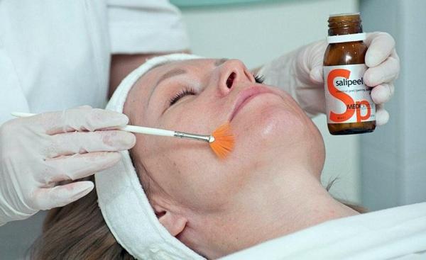 Нанесение салициловой кислоты на лицо