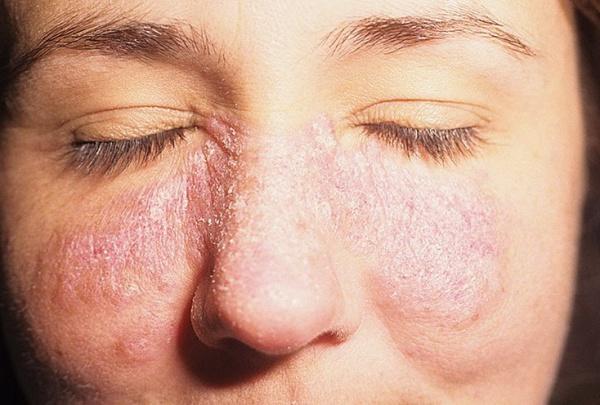 Покраснение на лице шелушится