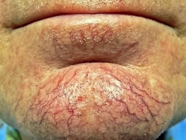 расширенные сосуды на лице