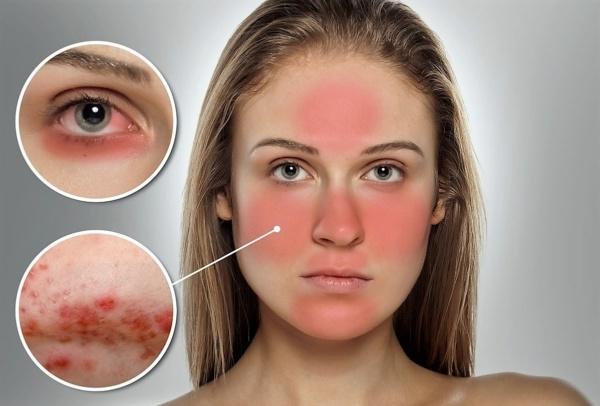 розацеа может стать причиной покраснения кожи