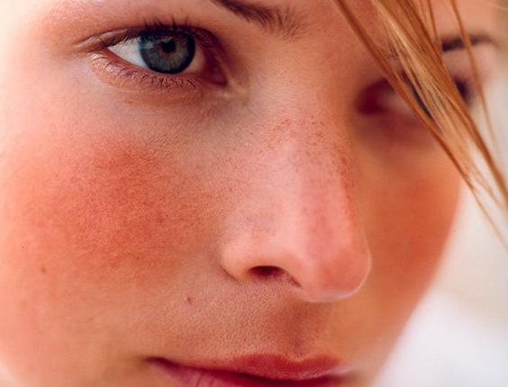 Красная кожа лица