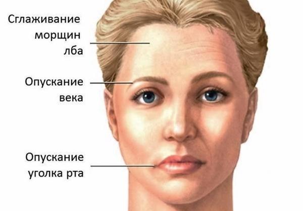 птоз века при параличе двигательного глазного нерва