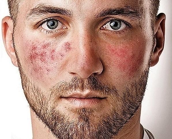 Красные шелушащиеся пятна на лице у взрослого — Красивое лицо