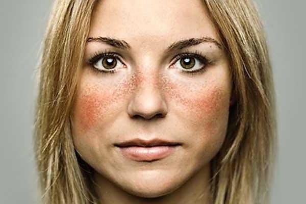 локалицация покраснения кожи лица