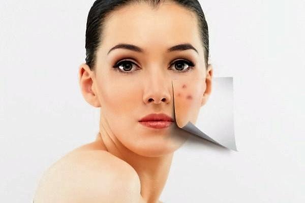 мелкая сыпь на лице